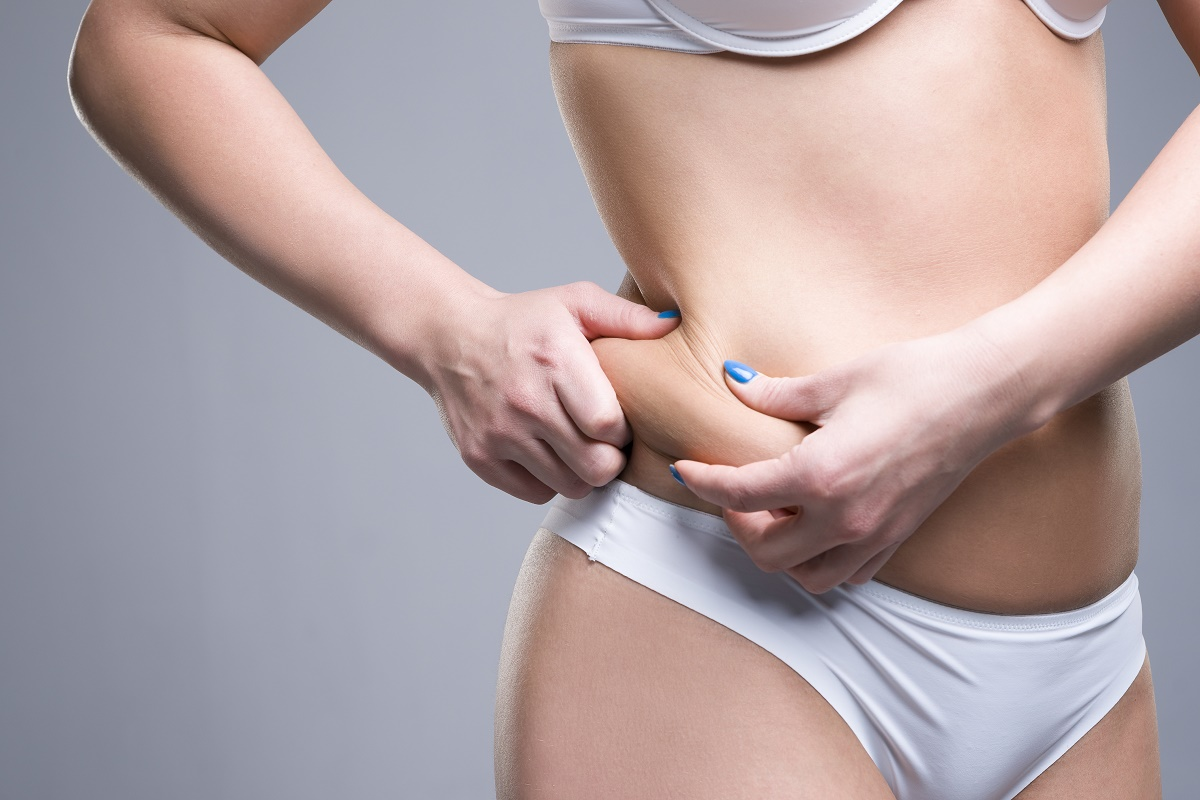 Should You Worry about Sagging Skin after Lipo?